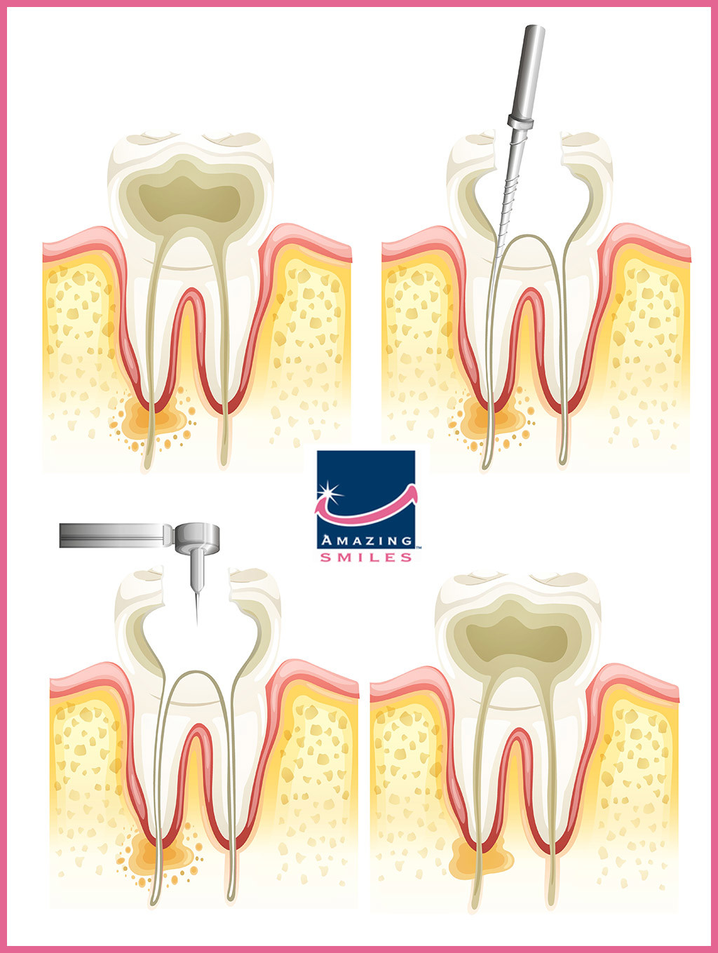 Root Canal Dentist Gold Coast and Logan