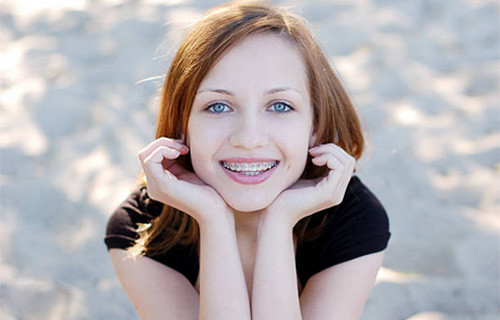 dental braces for kids gold coast