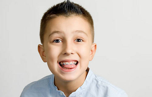 dental braces for kids logan