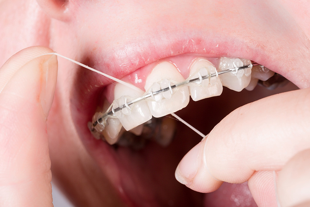 Can You Floss If You Have Braces Yes You Can And Here S