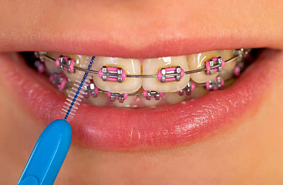 orthodontist gold coast