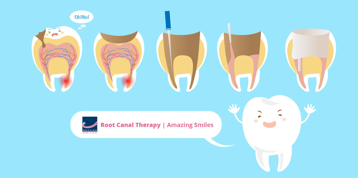 root canal therapy gold coast